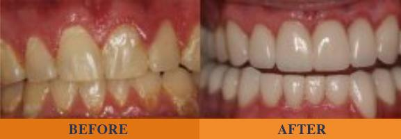 teeth dental repair