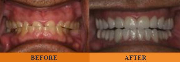 before and after dental repair