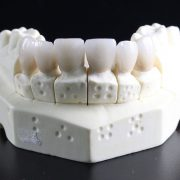 CEREC Dentistry