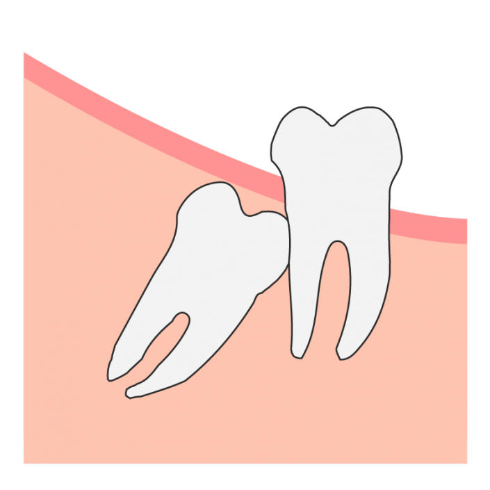 Angular Wisdom Tooth Impaction