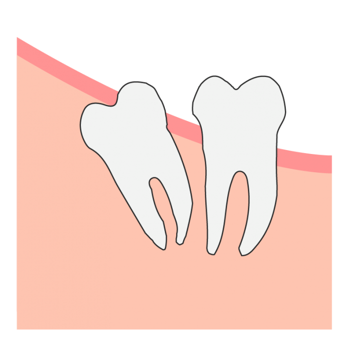 Distal Wisdom Tooth Impaction