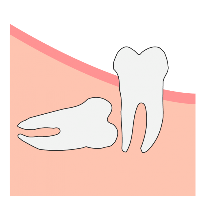 Horizontal Wisdom Tooth Impaction