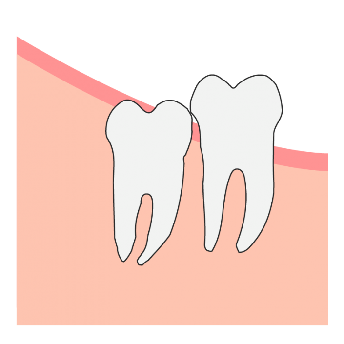 Partial Wisdom Tooth Impaction