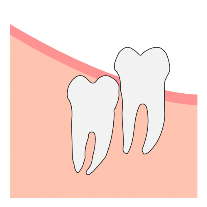 Vertical Wisdom Tooth Impaction