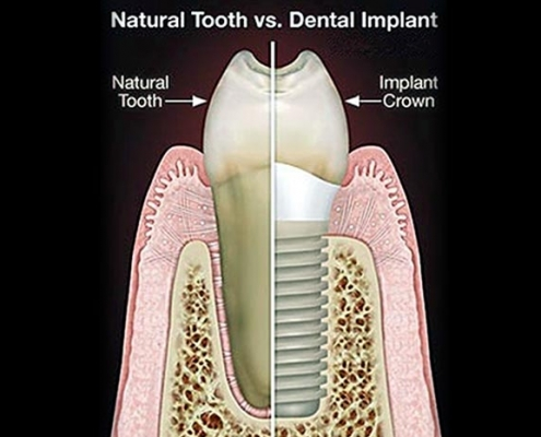dental implant procedures grand junction co