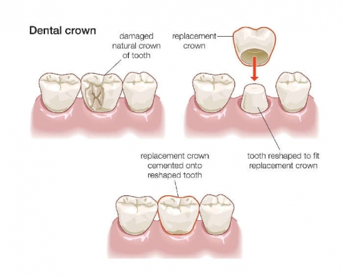 diagram of crown tooth